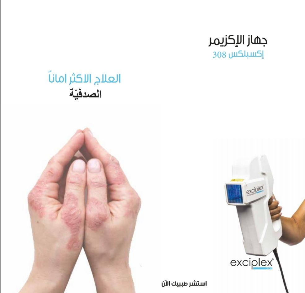علاج مرض الصدفية: